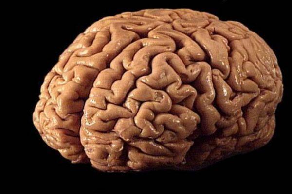 сон про мозг